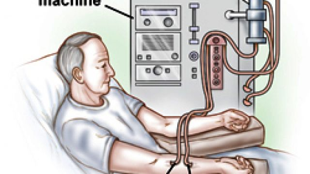 Dialysis_Access_02_Base_250.jpg